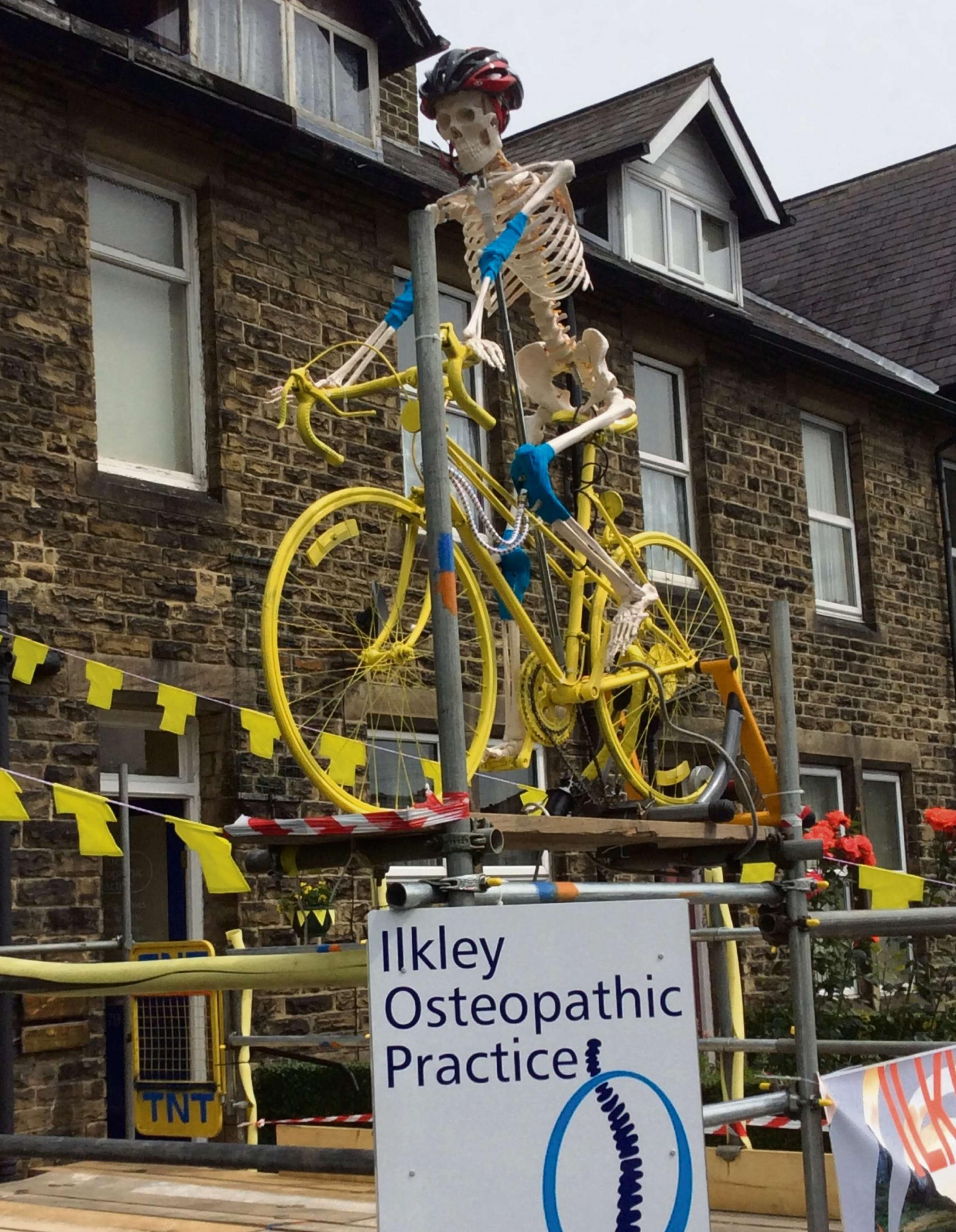 'Steve the Skeleton' offering 25% off at Ilkley osteopaths